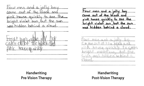 case study of a gifted child Underachieving gifted students: two case studies hannah the education of gifted and talented children claimed that between 38 and between 15 and 40% drop out of school before completing 408 underachieving gifted students: two case studies year 12 studies (2001, p 14) more.