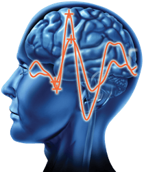 gI_62247_VEP Brain